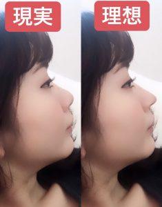 韓国 整形 鼻