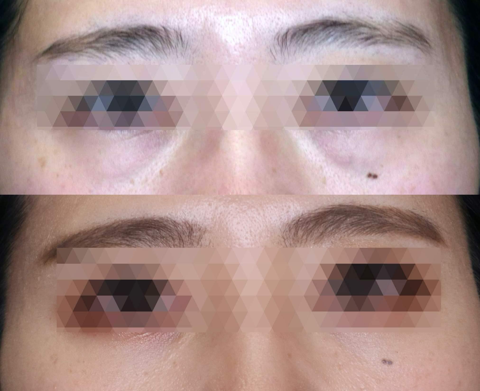 目の下の脂肪取りの画像